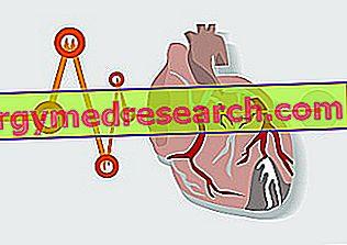 Isquemia de miocardio de A.Griguolo