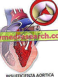 Kekurangan aorta