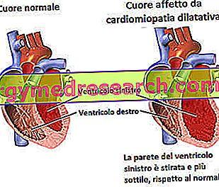 Cardiomyopathy melebar