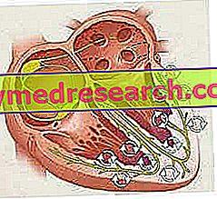 Fibrilasi ventrikular
