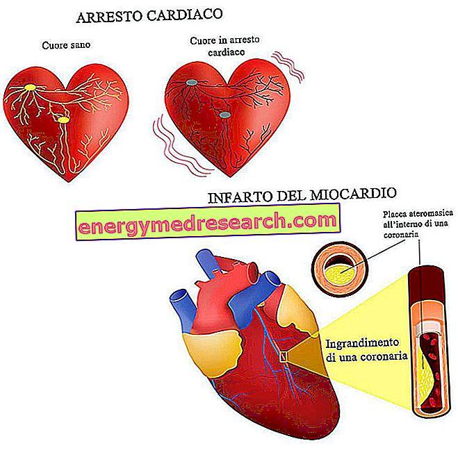النوبة القلبية والسكتة القلبية هي نفس الشيء؟