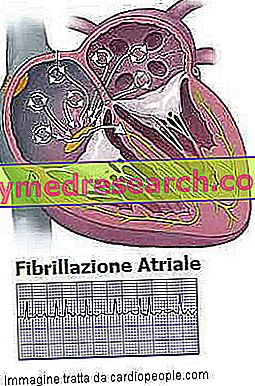 Atrijska fibrilacija