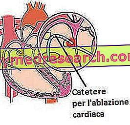 Ablația cardiacă