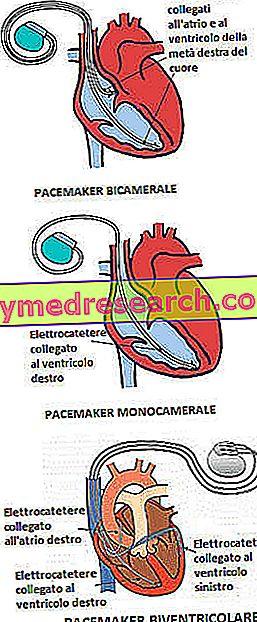 hipertenzija su širdies stimuliatoriumi)