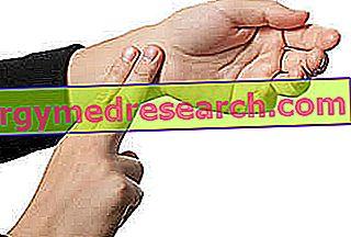Taquicardia paroxística