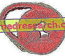 Bal kamrai hipertrófia - okok, tünetek, gyógyulások