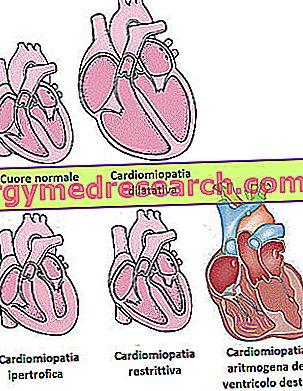 اعتلال عضلة القلب - اعتلالات عضلة القلب