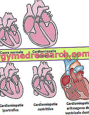 Kardiomiopatija - kardiomiopatijos
