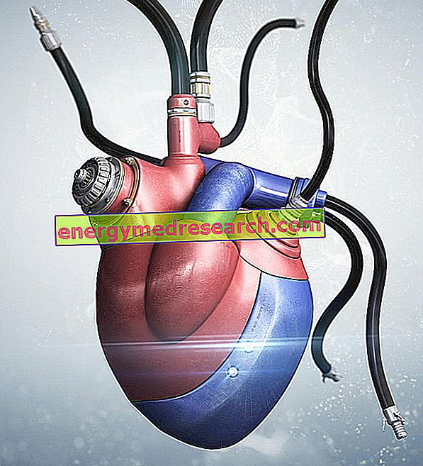 หัวใจเทียมทั้งหมดคืออะไร?