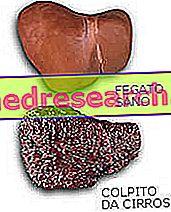 Pečeňová cirhóza