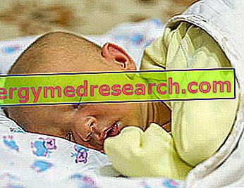 Žutica u novorođenčadi