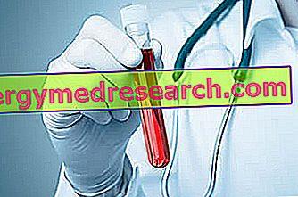 Trombotische trombocytopenische purpura (TTP) door G.Bertelli