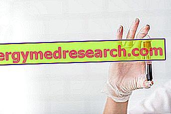 Megaloblastična anemija: Što je to?  Uzroci, ispiti za dijagnostiku i terapiju G. Bertellija