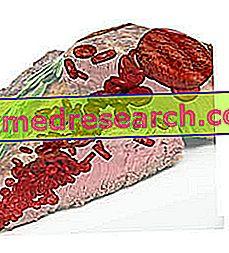 hemosiderin