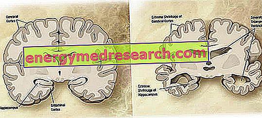 Alzheimer - Morfologia, Patogênese, Aspectos Neuroquímicos