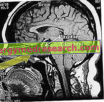 Adenoma hipofisario - Causas y síntomas