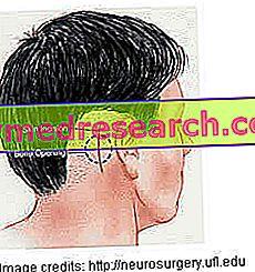 Trigeminální neuralgie - terapie a léčba