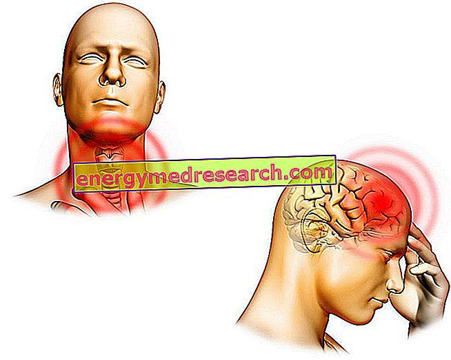 Hashimoto encefalopatie: tratament