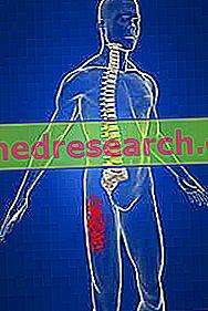Parestezija meralgia