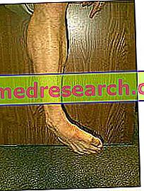 神経栄養性ジストニア(発作性)