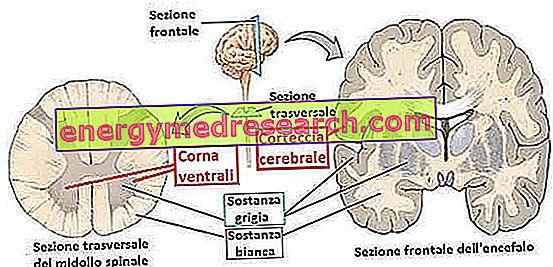 SLA - Sclérose latérale amyotrophique