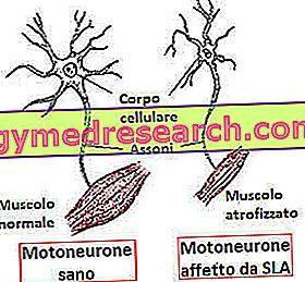pierderea în greutate a neuronilor motori)