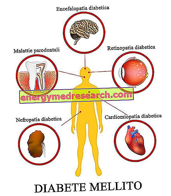 Ensefalopati diabetes: apa itu?