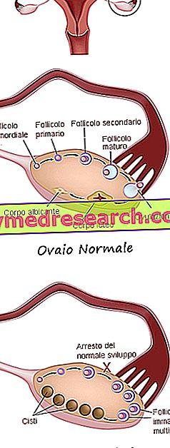 Polycystisk ovariesyndrom