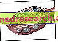 Polycystický vaječník, inzulínová rezistencia a výživa