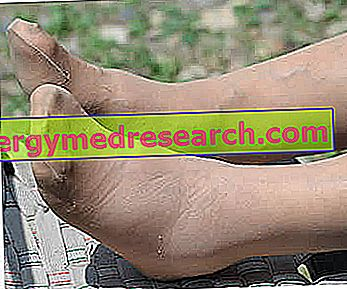 Ankles a oteklé nohy - příčiny a prostředky