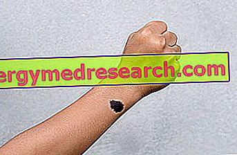 Врожденный меланоцитарный невус И. Ранди
