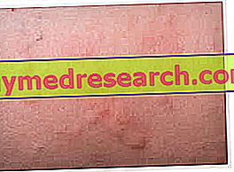 Крапивница: симптомы, причины и диагностика
