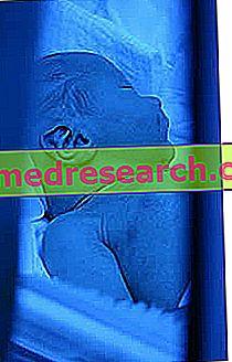 Fototerapi - resultater, utførelse, bivirkninger, resultater