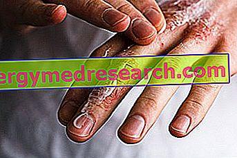 Ragadi: Vad är de?  Orsaker, symtom och botemedel av G. Bertelli