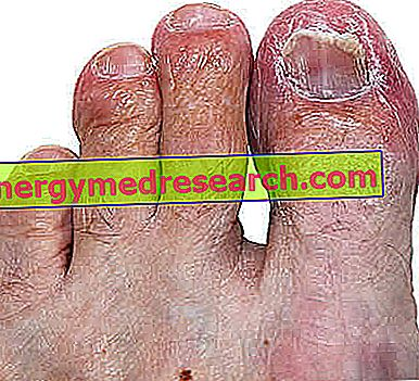 Onichomikozės odos simptomai
