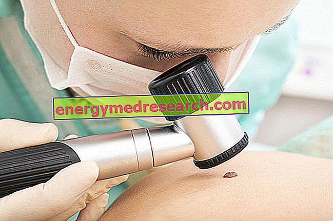Kā tiek veikta dermatoskopiskā izmeklēšana?