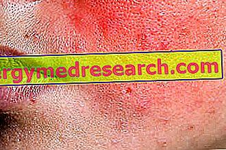 I.Randi Stīvensa-Džonsona sindroms