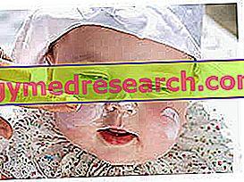 बच्चों के लिए सनस्क्रीन - पेडोसोकेटिक्स