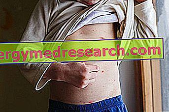 f80faeebc5136 احمرار محلي أو عام. يمكن ظهور بقع حمراء على الجلد ...