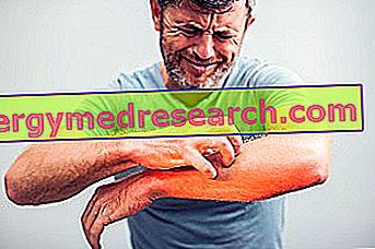 Krooniline samblikopelaks: mis see on?  G. Bertelli põhjused, sümptomid ja ravi