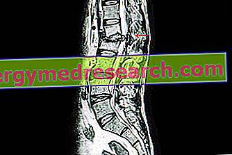 Spondylodiscite: Kas tas ir?  A.Griguolo cēloņi, simptomi, diagnostika, terapija un prognozēšana