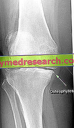 Osteofiti i osteofitoza