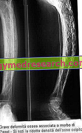 Болест на Паджет - костно заболяване на Паджет