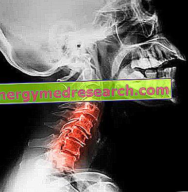 Diszplázia(dysplasia) oka, leírása, tünetei, kezelése | kutyaegészsébudapestguides.hu