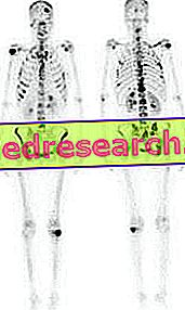 Scintigrafia kostí