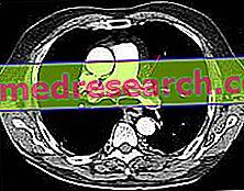 Pulmonale embolie - diagnose en behandeling