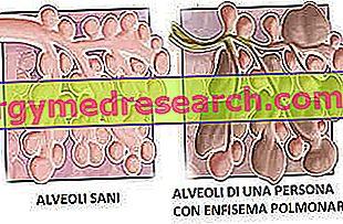 Πνευμονικό εμφύσημα