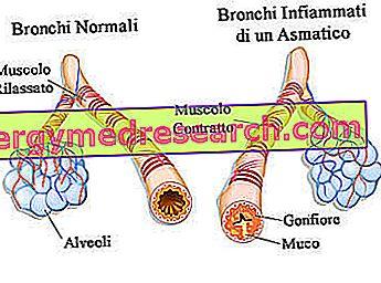 bronchus plečiantys vaistai nuo hipertenzijos)