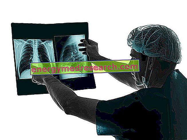 Lungentransplantation: klinische Untersuchungen zur Aufnahme in die Warteliste