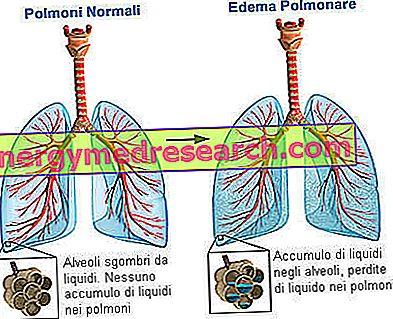 hipertenzijos kvėpavimo gydymas